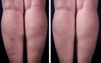 Varicose Veins: An Overview